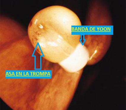 ligadura-de-trompas-10