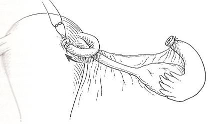 ligadura-de-trompas-12