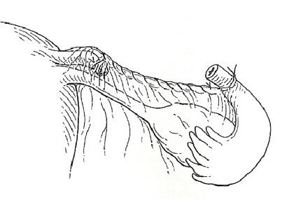 ligadura-de-trompas-13