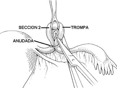 ligadura-de-trompas-7