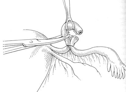 ligadura-de-trompas-8
